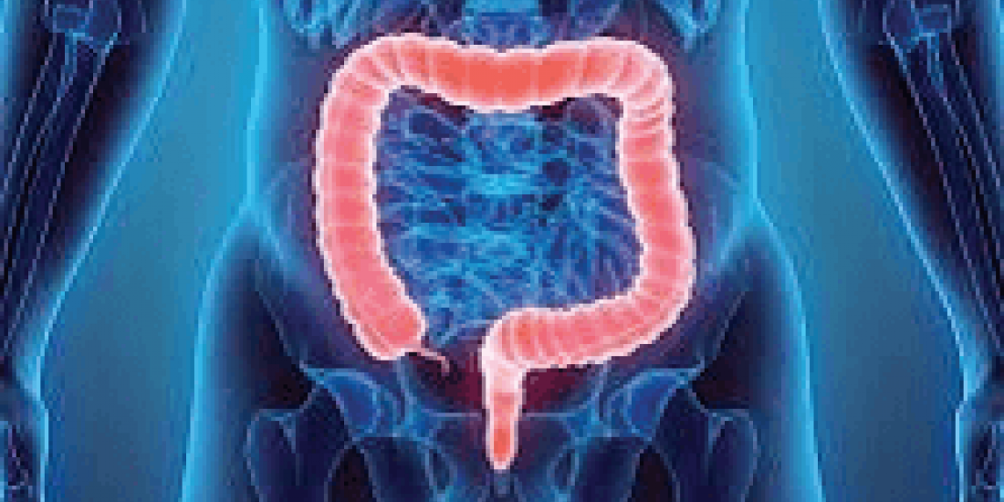 Colorectal cancers