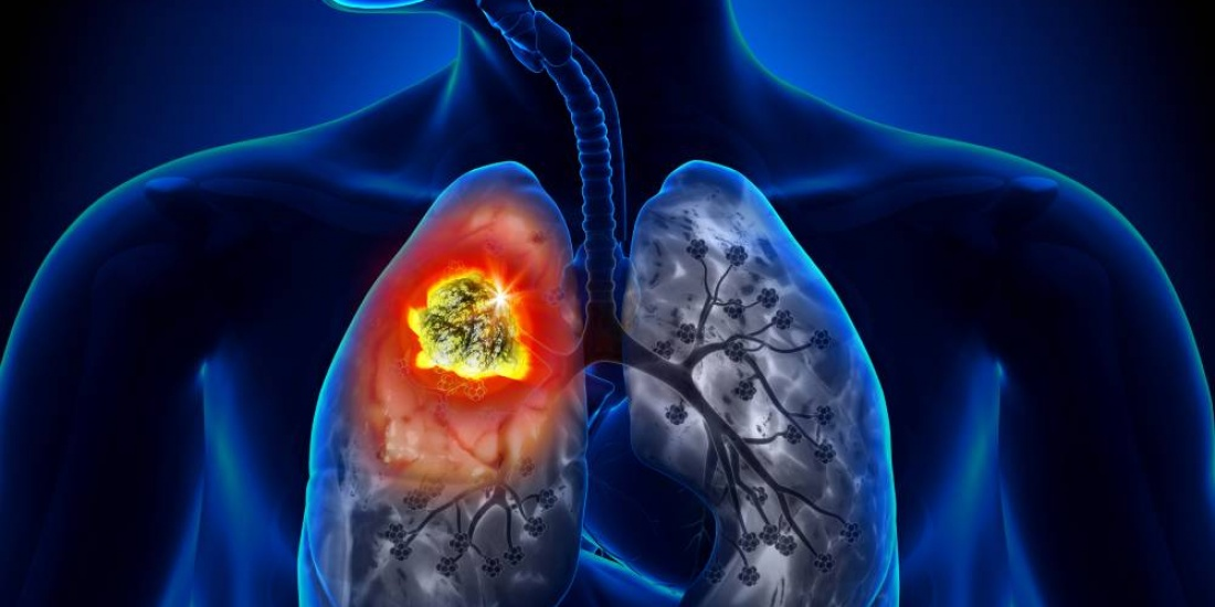 Squamous NSCLC lung