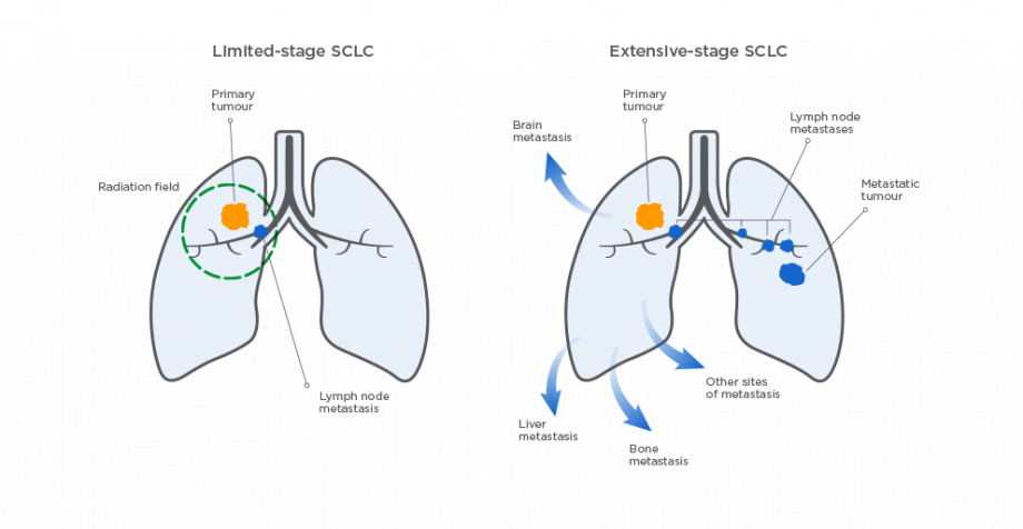 Limited- and extensive-stage SCLC